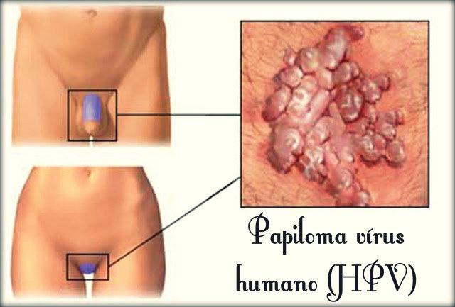 HPV: causas, sintomas, transmissão, tratamento, prevenção e vacinação.