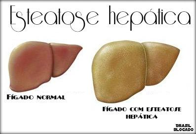 Esteatose hepática 3° grau: causas, sintomas, tratamento, prevenção.