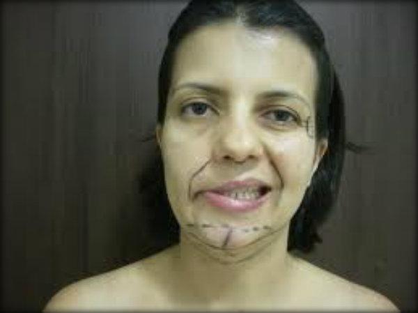 Paralisia Facial Periférica