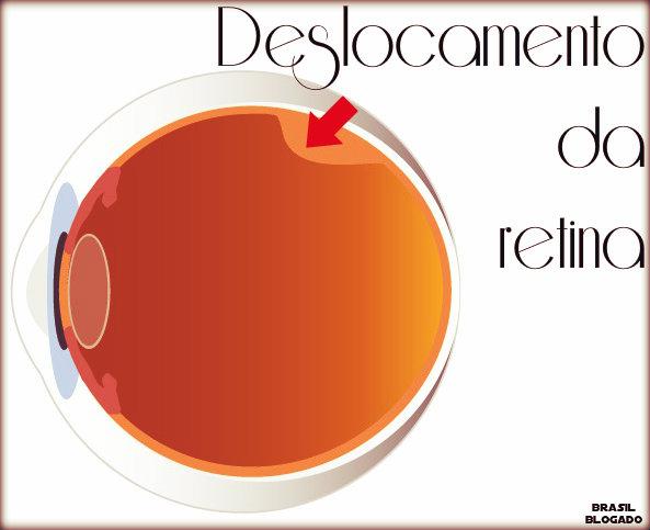Deslocamento da retina: causas, sintomas, tratamento e prevenção.