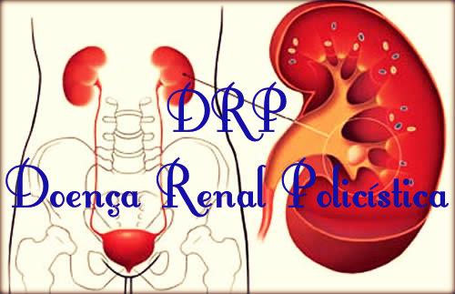 DRP: causas, sintomas, tratamento e complicações.