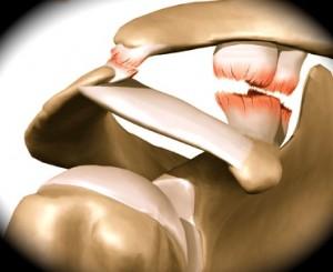 Rompimento de ligamento do ombro