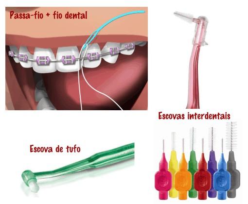 A imagem demonstra como passar o fio dental com ajuda da agulha descartável. E mostra também diversos modelos de escovas.