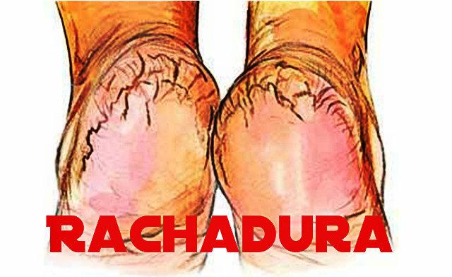 Não se esqueça de limpar bem entre os dedos, pois ali, também faz parte do seu pé.