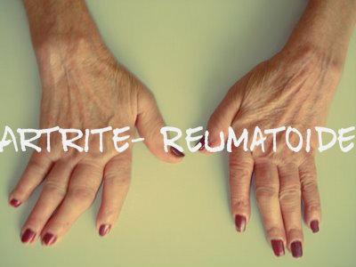 Acontece o endurecimento nas articulações, o que por sua vez, acaba causando a deformidade nos dedos.