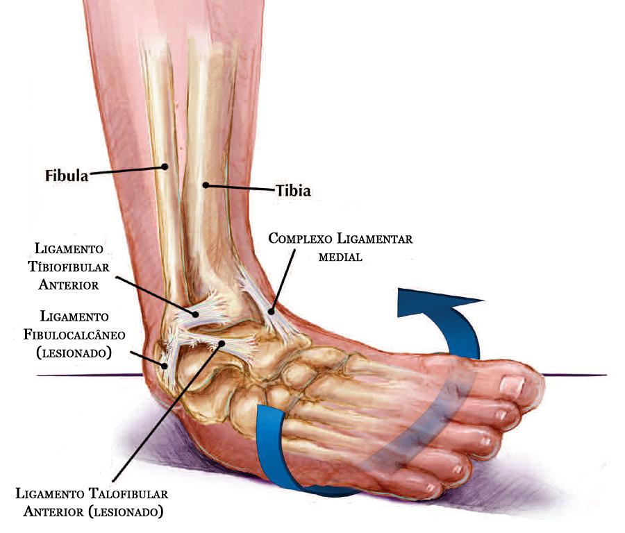 Tome cuidado ao fazer certos movimentos, pois pode acontecer do seu pé não aguentar o peso e acabar se movendo devido a força.