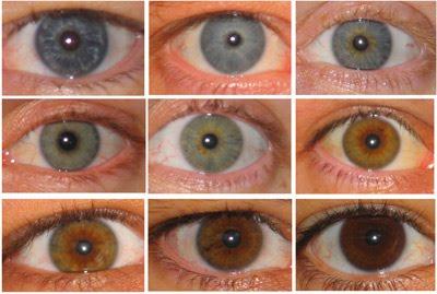 A cor do olho também pode ficar mais clara com o passar do tempo, pois vai acontecendo a perda de melanina.