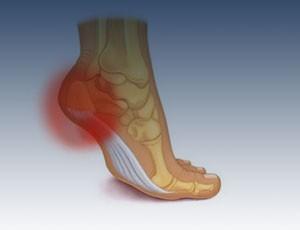 As dores podem surgir diversos motivos, por tanto, procure analisar bem o tipo de dor que esta sentindo.