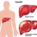hepatite b2