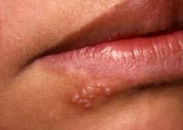 lesão bucal
