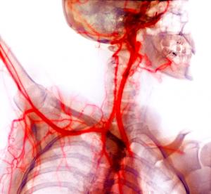 Sangue venoso e arterial