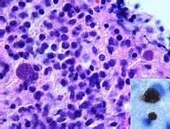 Vírus da Toxoplasmose