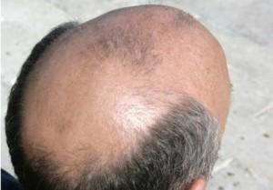 [Imagem: tratamento-calv%C3%ADcie-300x209.jpg]